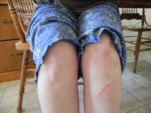 Bruise 001